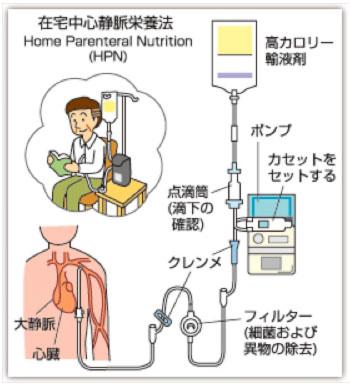 在宅中心静脈栄養法